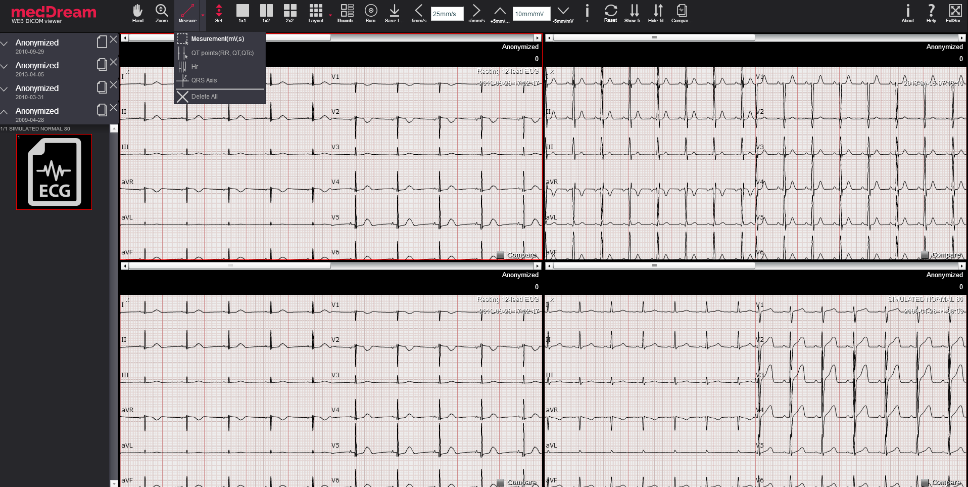 ECG HTML5 Dicom viewer MedDream
