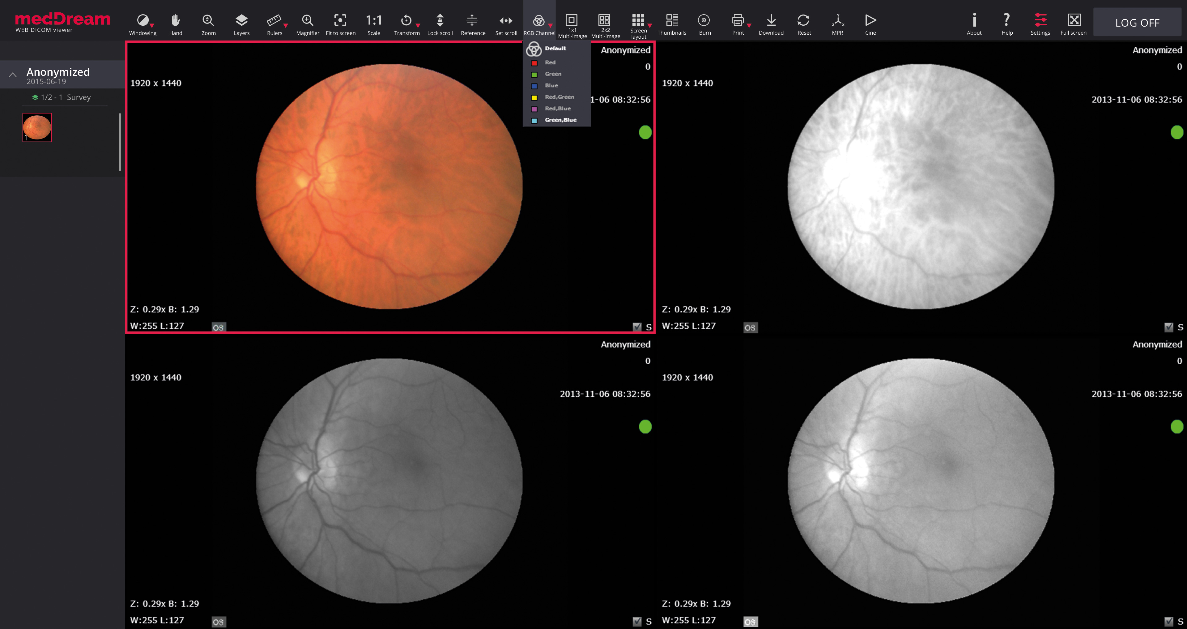 Opthalmology HTML5 Dicom viewer MedDream